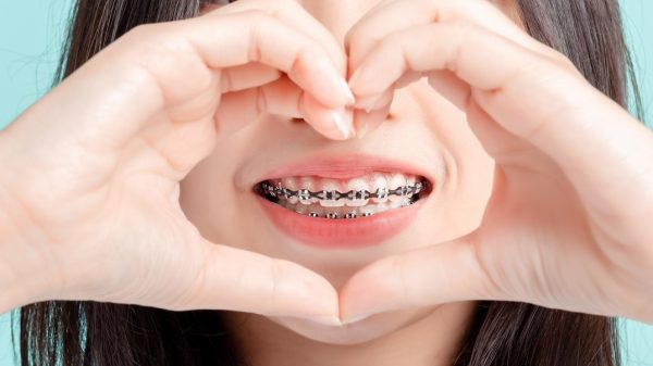 Orthodontist-in-Mission-Viejo-describes-what-foods-can-damage-your-braces